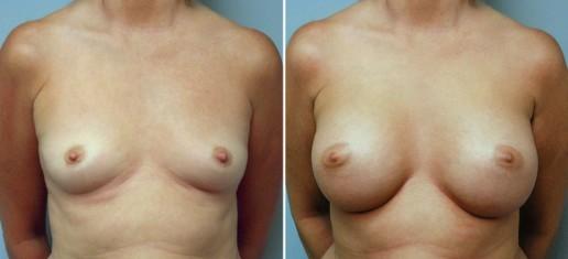 breast-augmentation-01a-stern
