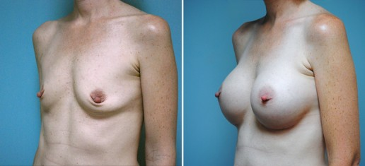 breast-augmentation-02b-stern