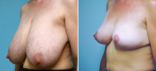 breast-reduction-02b-with-lift-stern