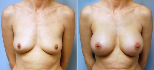 breast-augmentation-03a-stern