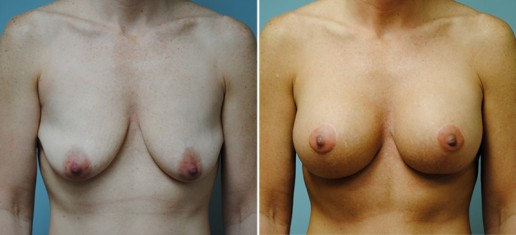 Asheville Breast Lift 2