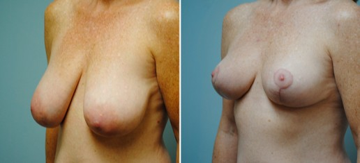 Asheville Breast Reduction 4