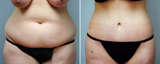 abdominoplasty-08a