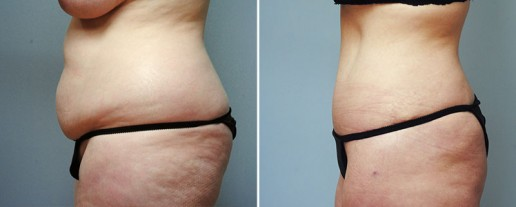 abdominoplasty-08c