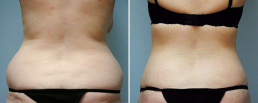 abdominoplasty-08d-lipo