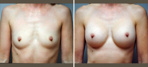breast-augmentation-04a-new
