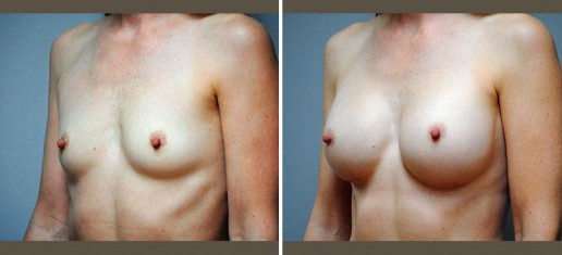 breast-augmentation-04b-new