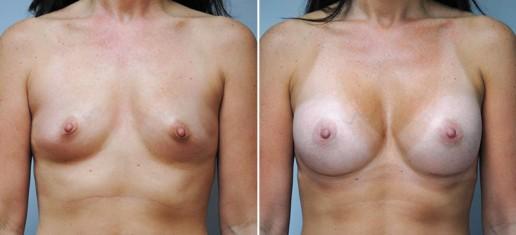 breast-augmentation-05a-stern