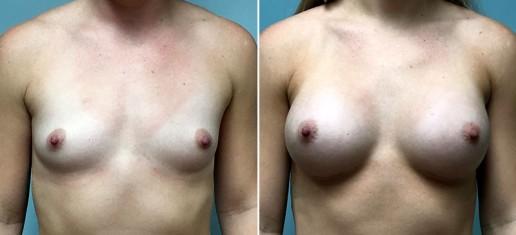 breast-augmentation-2360a-stern