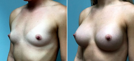 breast-augmentation-2360b-stern