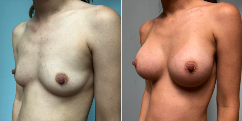Breast Augmentation 6b