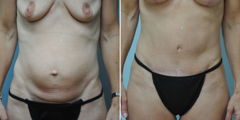 abdominoplasty 11a