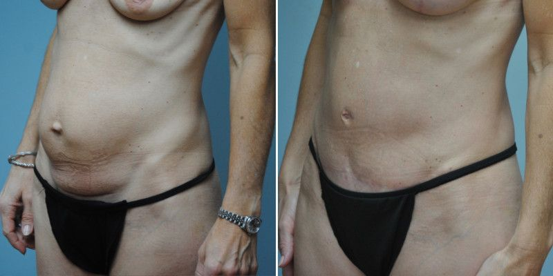 abdominoplasty 11b